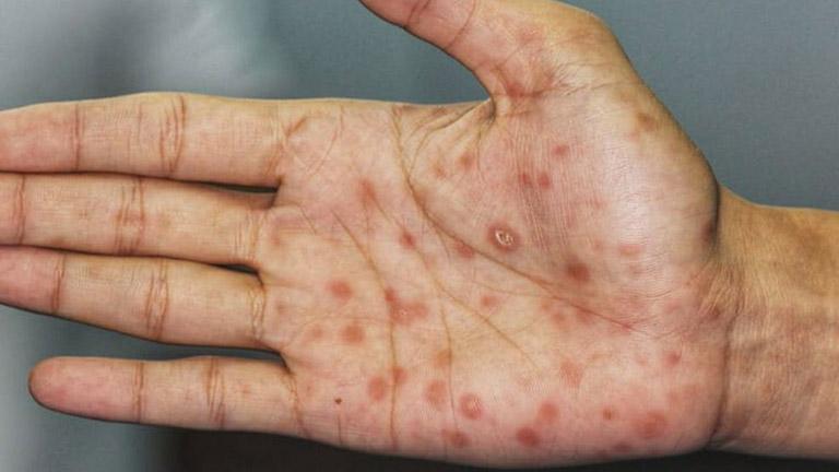 Các vết thương của bệnh giang mai thường có hình tròn hoặc hình oval ở dạng đốm có màu đỏ thẫm trên bề mặt lớp bì