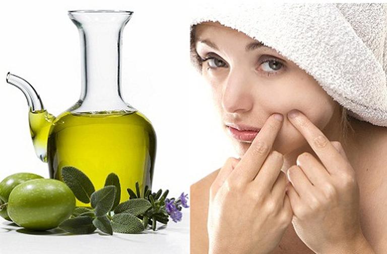 Dầu oliu có tác dụng trị mụn và ngăn ngừa sự phát triển của chúng