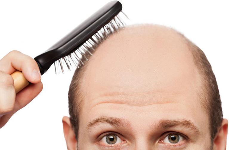 Thường xuyên rụng tóc