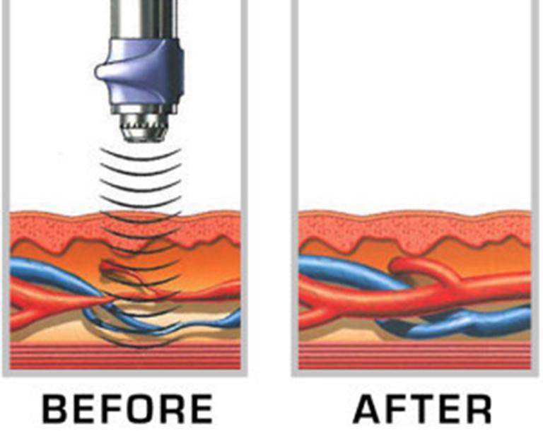 Sóng sung kích có tác dụng tăng cường bơm máu và tăng sinh mạch máu tân tạo