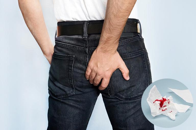 Bệnh trĩ chảy máu thực sự có nguy hiểm không? Cần làm gì để khắc phục hiệu quả khi gặp tình trạng này?