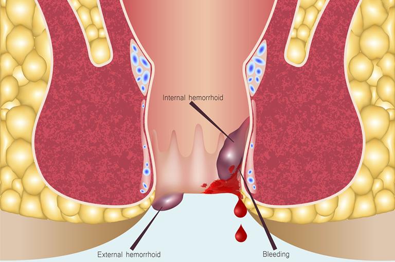Khi nào cần phẫu thuật cắt trĩ?