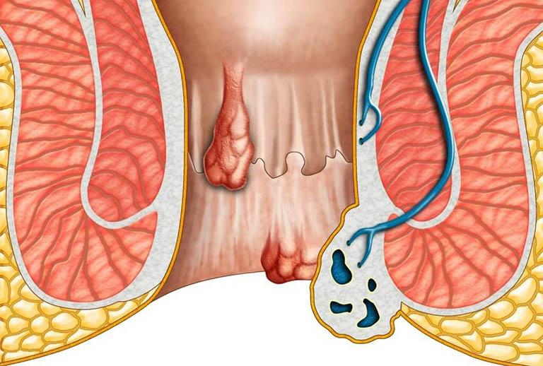 Bệnh trĩ nội độ 2 sẽ không gây nguy hiểm khi điều trị sớm