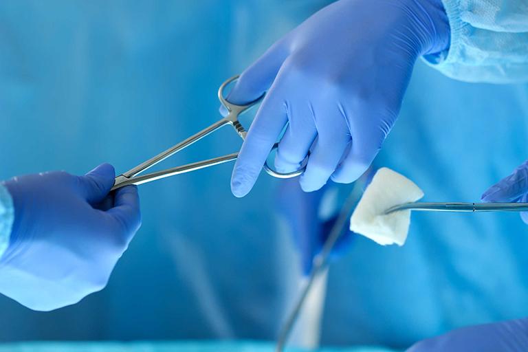 Tìm hiểu phương pháp điều trị xuất tinh sớm bằng phẫu thuật