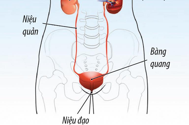 Nhiễm trùng đường sinh sản