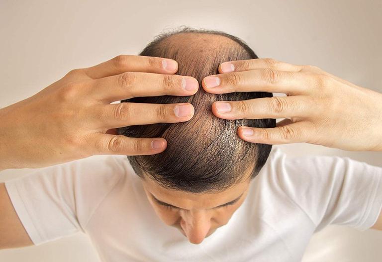 Thuốc điều trị rụng tóc