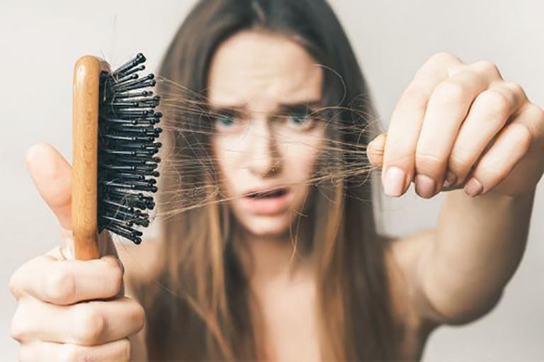 Rụng tóc là một trong những hậu quả nghiêm trọng do bệnh thận yếu gây ra