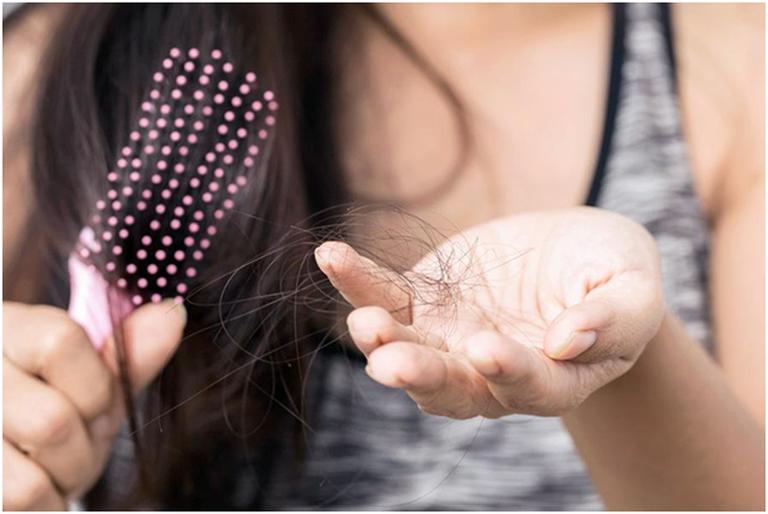 Điều trị rụng tóc do thận yếu bằng cách cải thiện chức năng của thận