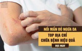 Top 6 cơ sở y tế điều trị nổi mề đay uy tín, hiệu quả tại Hà Nội và Hồ Chí Minh