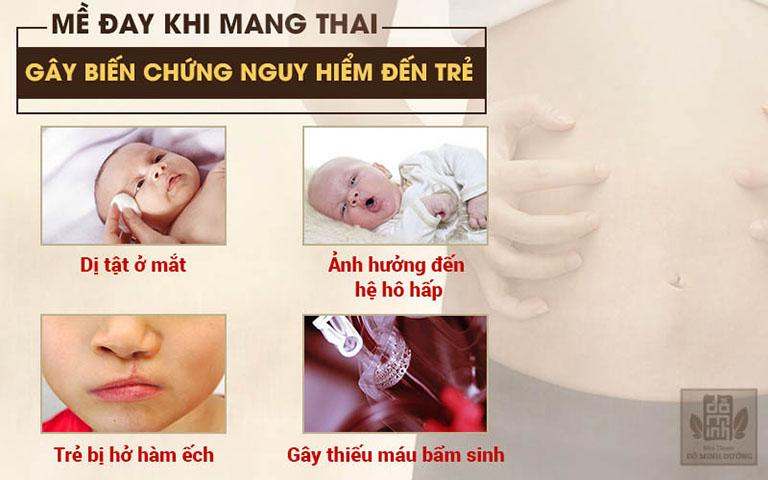 Biến chứng khi bị nổi mề đay khi mang thai