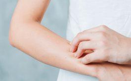 Dị ứng cơ địa là bệnh da liễu thường gặp gây nhiều khó chịu cho người bệnh