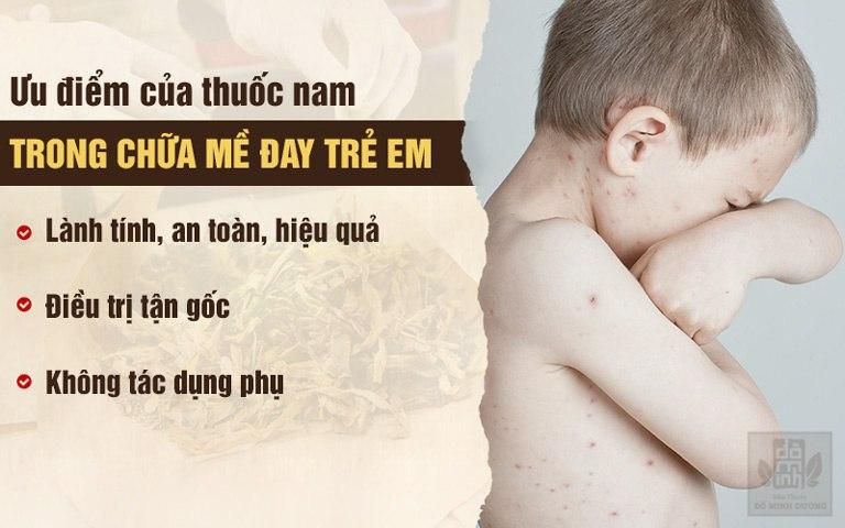 Chữa mề đay ở trẻ em bằng thuốc nam an toàn, hiệu quả cao