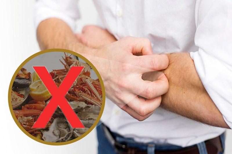 Người bị phong ngứa kiêng ăn gì tốt nhất?