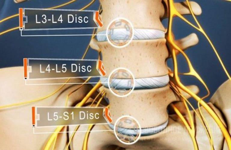 Bệnh thoát vị đĩa đệm L5 S1 và cách điều trị