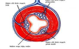 Bệnh trĩ vòng ngày càng phổ biến trong các loại bệnh trĩ hiện nay