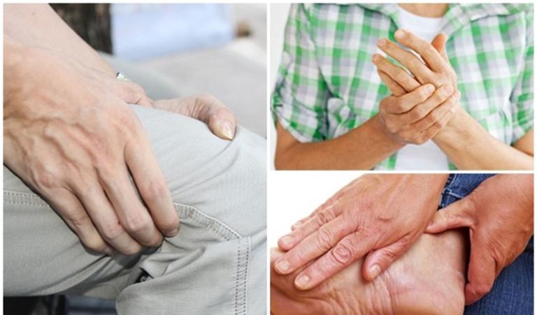 Viêm khớp dạng thấp có diễn biến phức tạp, gây đau tại nhiều khớp