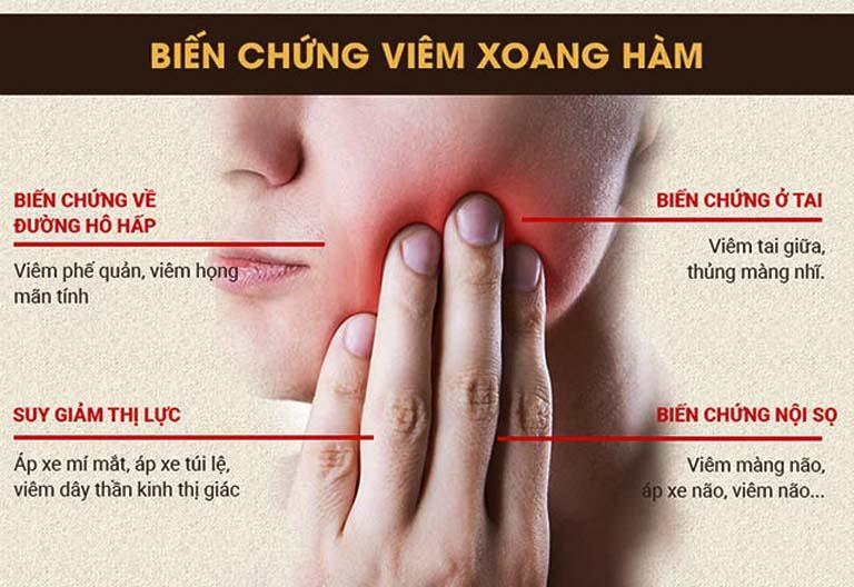 Những biến chứng nguy hiểm của bệnh viêm xoang hàm