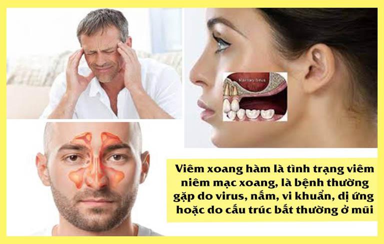Bệnh viêm xoang hàm rất phổ biến