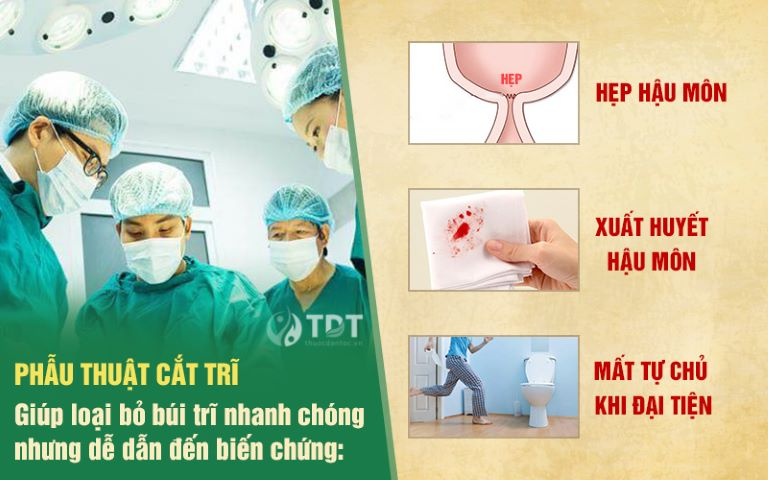 Những biến chứng có thể gặp phải sau khi cắt trĩ
