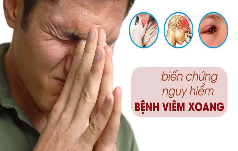 Viêm xoang nặng nếu không được điều trị tốt sẽ gây ra nhiều biến chứng nguy hiểm