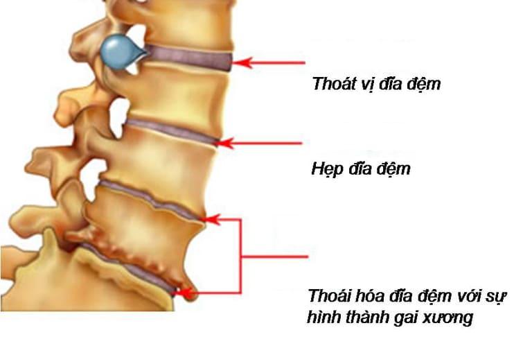 Biến chứng của mổ thoát vị đĩa đệm có thể gây thoái hóa cột sống
