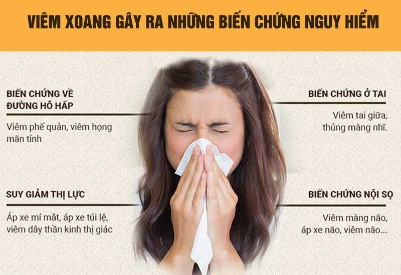 Biến chứng bệnh viêm xoang mũi