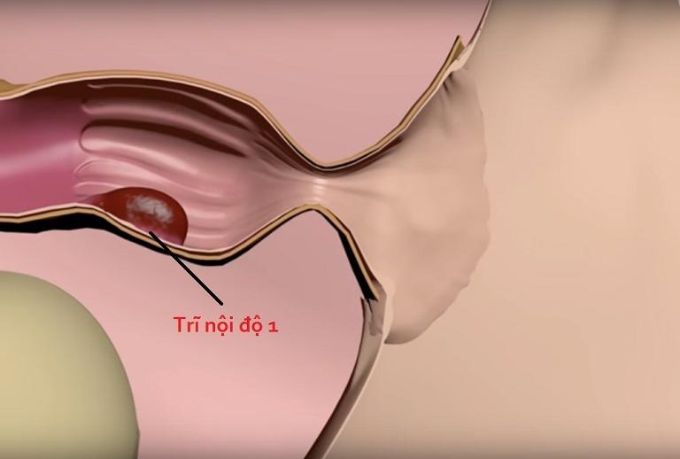 Trĩ nội rất khó phát hiện trong giai đoạn đầu vì không có dấu hiệu rõ ràng và không thể quan sát thấy bằng mắt thường