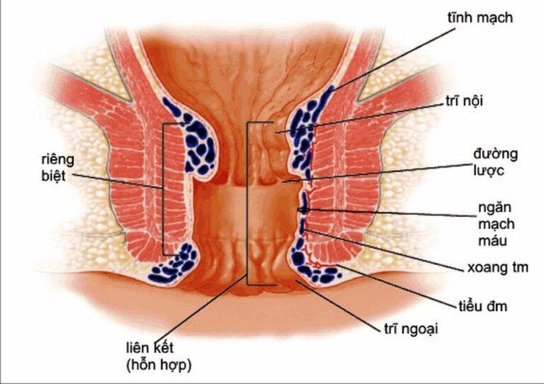 Đau rát, xuất huyết hậu môn và búi trĩ sa ra ngoài là những biểu hiện chung của bệnh trĩ. Tuy nhiên, nhiều trường hợp không cảm thấy đau dù búi trĩ lòi ra ngoài