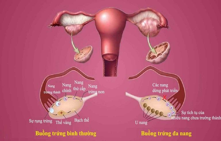 Buồng trứng đa nang là bệnh lý thường gặp ở chị em, hình thành do sự chênh lệch quá lớn giữa hormone nam và nữ