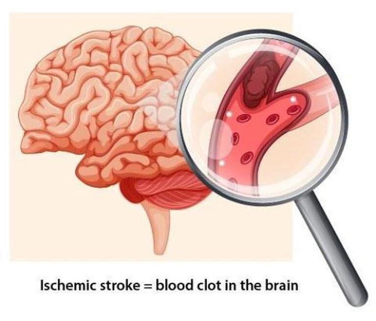 Những trường hợp mất ngủ và đau đầu chức năng muốn chữa khỏi cần nâng cao sức đề kháng. Đồng thời hỗ trợ hoạt động của cơ thể về lại trạng thái bình thường