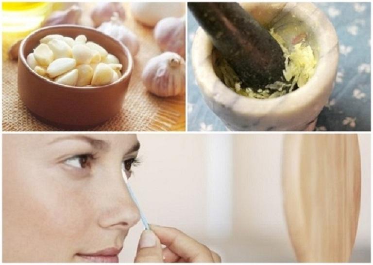 Tỏi chứa nhiều hoạt chất kháng viêm giúp loại bỏ mụn hiệu quả