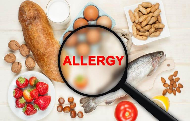 Bị viêm mũi dị ứng cần hạn chế các thực phẩm dễ gây kích ứng