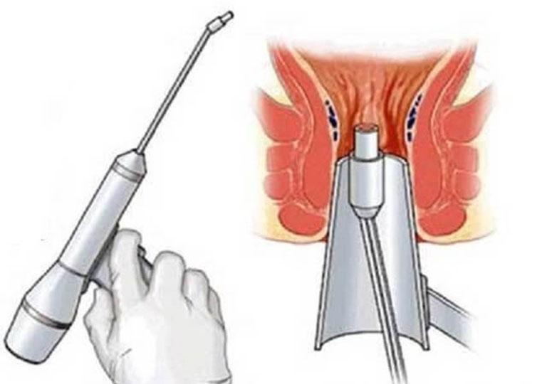 Cắt trĩ nội độ 4 bằng phương pháp laser