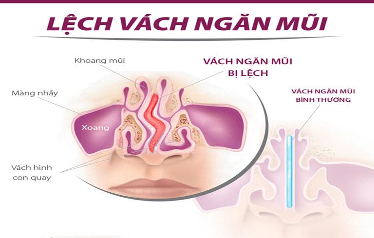 Cấu trúc mũi có vấn đề là nguyên nhân gây viêm xoang