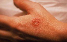 Bệnh chàm eczema
