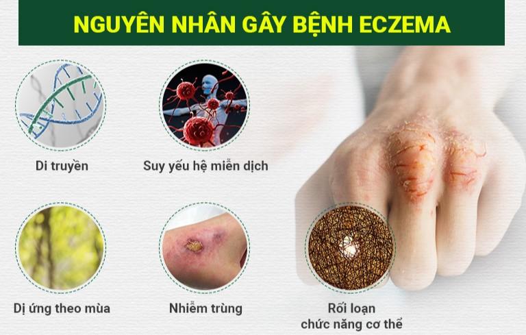 Nguyên nhân gây bệnh chàm