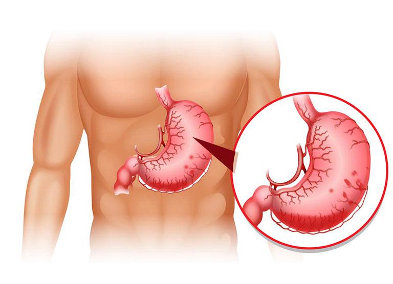Viêm xung huyết dạ dày
