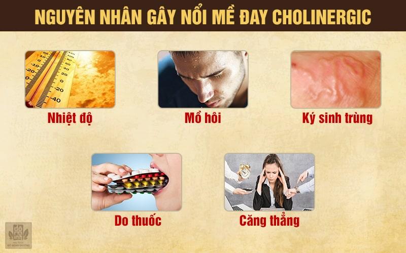 Nguyên nhân bệnh mề đay cholinergic thường gặp nhất hiện nay