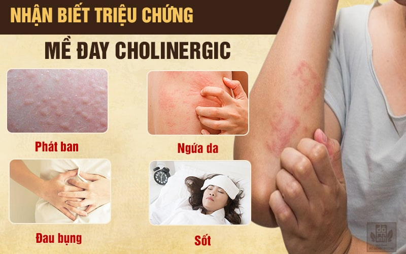 Triệu chứng mề đay cholinergic không thể chủ quan