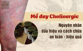 Mề đay cholinergic: Nguyên nhân, dấu hiệu và cách điều trị an toàn, hiệu quả