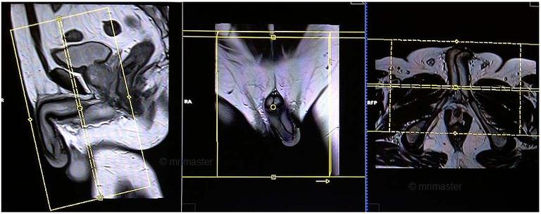 Trong một số trường hợp chẩn đoán bệnh liệt dương cần chụp MRI