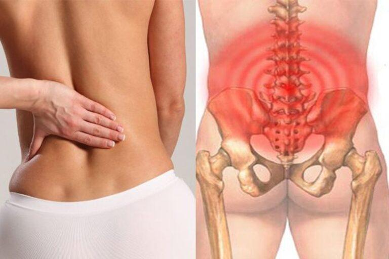 Tình trạng đau lưng thường xuất phát từ cột sống