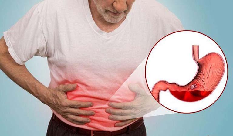 Xuất huyết dạ dày có thể ảnh hưởng trực tiếp đến sức khỏe người bệnh