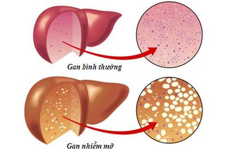 Dầu cá Omega 3 giúp giảm mỡ trong gan