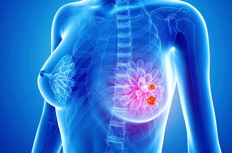 Dầu cá Omega 3 giúp ngăn ngừa ung thư