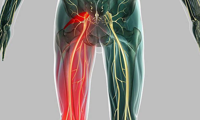 Dây thần kinh tọa được xác định từ vùng thắt lưng dưới kéo dài xuống bàn chân