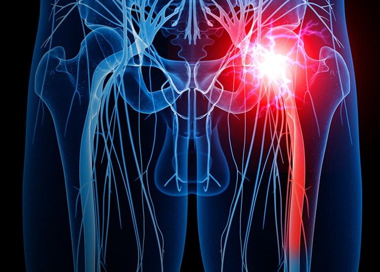 Hình ảnh Xquang xác định vị trí đau thần kinh tọa