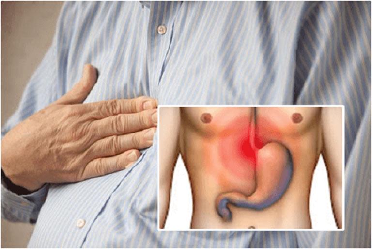 Đau thượng vị là dấu hiệu điển hình của bệnh lý dạ dày