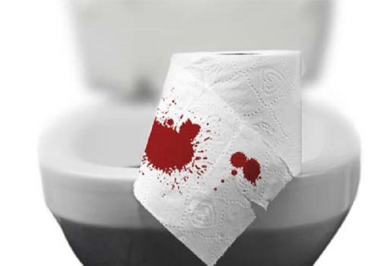 Đi ngoài ra máu - Triệu chứng đau dạ dày mãn tính