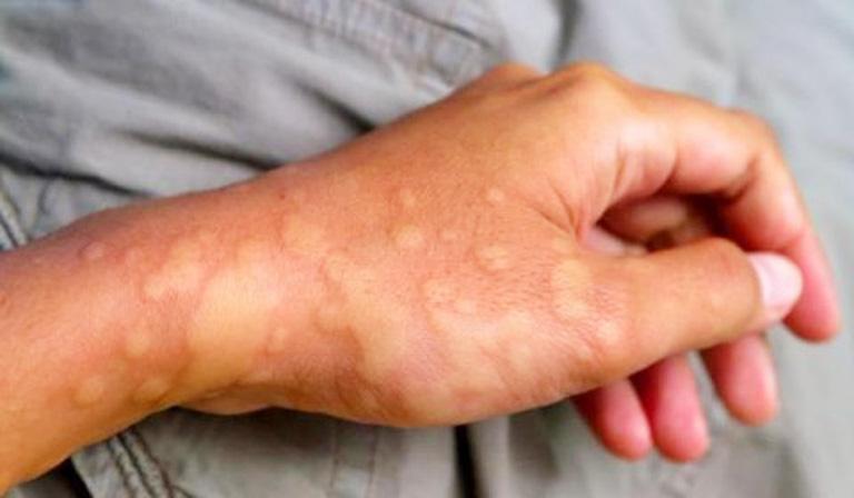 Dị ứng thời tiết lạnh nổi mẩn đỏ dễ nhận biết thông qua triệu chứng ngoài da
